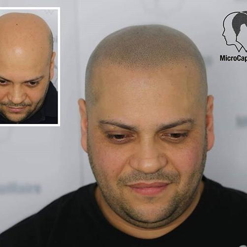 comparaison des solutions à la perte de cheveux