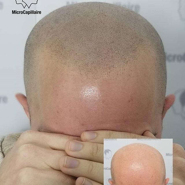 Première session de micropigmentation capillaire