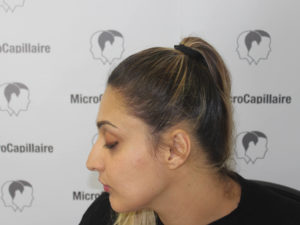 En quoi consiste la micropigmentation capillaire