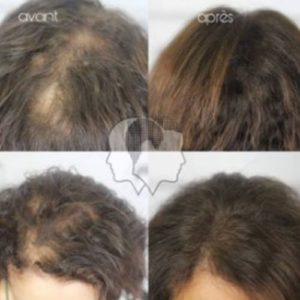Micropigmentation capillaire et cheveux longs