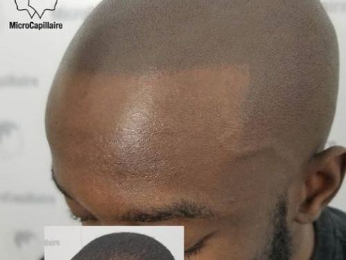 La micropigmentation capillaire peut elle être faite sur des peaux foncées?