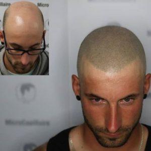 Solution à la perte de cheveux