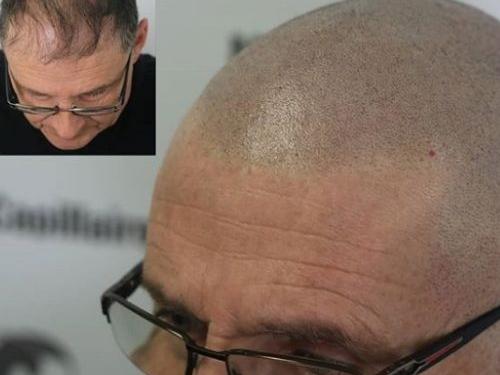 Micropigmentation capillaire Brossard
