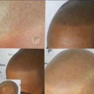 Comment résoudre son problème de perte de cheveux