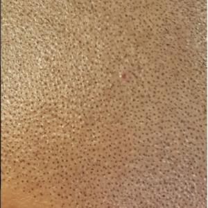 Questions/réponses sur la micropigmentation capillaire