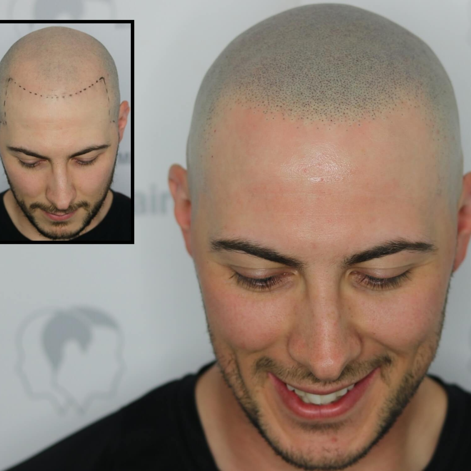 scalp micropigmentation capillaire