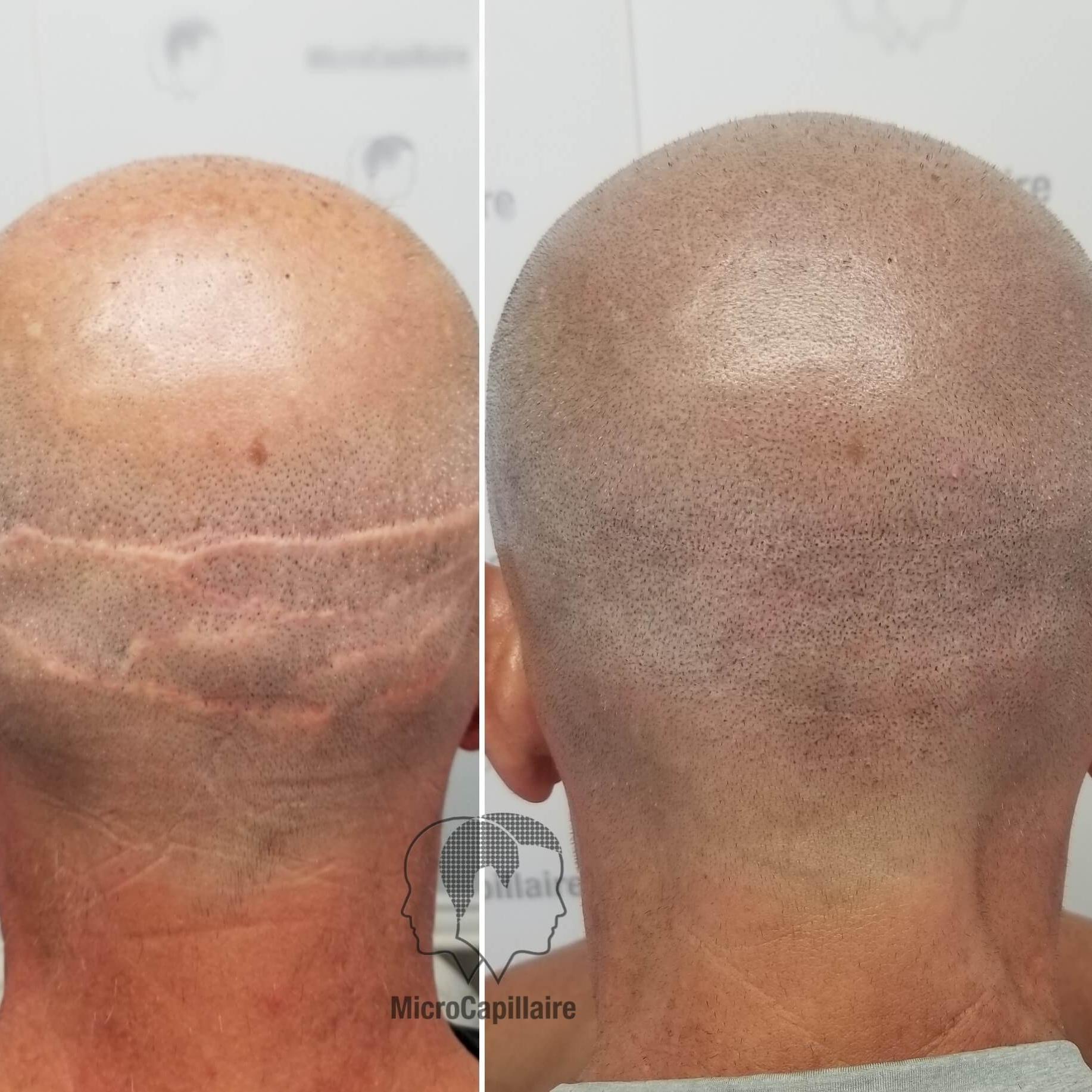 Cacher une cicatrice de greffe de cheveux
