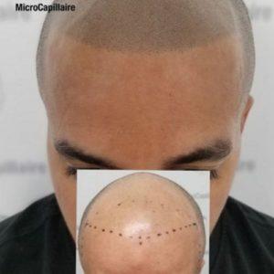 Micropigmentation capillaire et lignes frontales