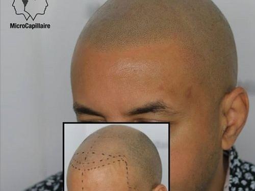 Micropigmentation capillaire résultats
