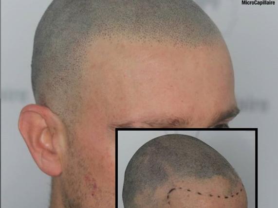 Micro pigmentation capillaire