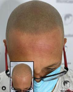Micropigmentation capillaire Montréal